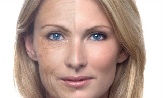 envejecimiento-prematuro-laser